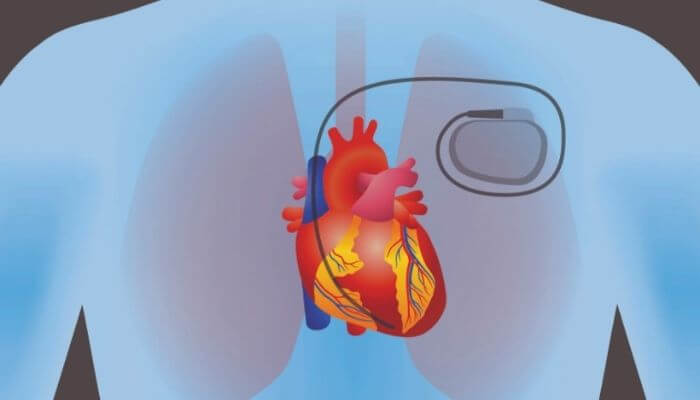 Does Induction Cooktop interfere Pacemakers